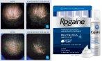 $49.99 MEN'S ROGAINE® UNSCENTED FOAM 4-MONTH AUTO DELIVERY