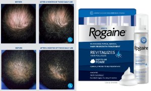 MEN'S ROGAINE® UNSCENTED FOAM 4-MONTH AUTO DELIVERY