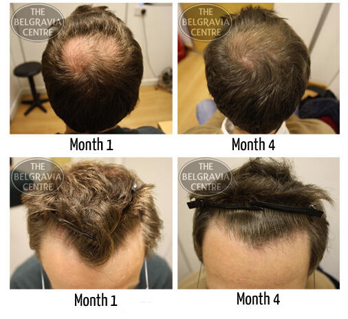 Best Seller in Hair Regrowth Treatments @ Multiple Sto...