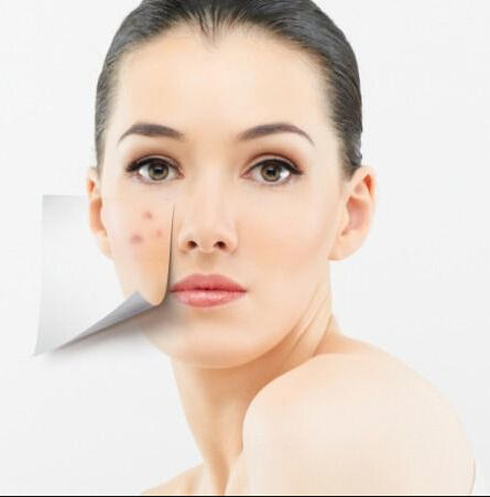 20% OFF  Top Selling Acne Skincare Solutions @ Skinstore