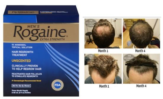 $33.84 Rogaine for Men Hair Regrowth Treatment, Original Unscented, 2 Oz, Three Month Supply