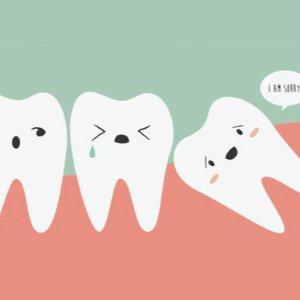 粉丝拔智齿经验分享美国看牙贵上天?教你怎么看牙最便宜!