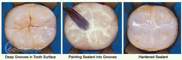 Dental Sealants(窝沟封闭)是什么