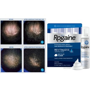$49.99包邮ROGAINE®  男士专用生发泡沫,每4个月自动送货