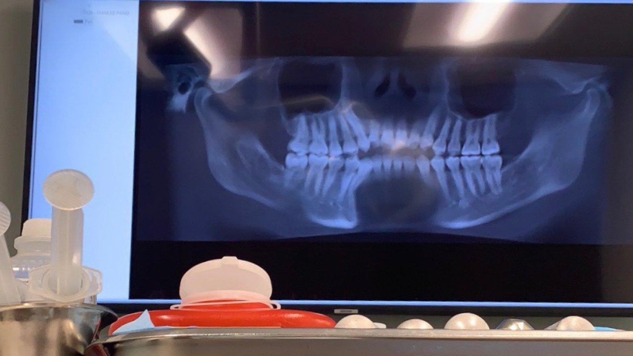 正畸日记(一)|美国牙齿矫正超详细记录|前期咨询,方案对比,拔牙经历