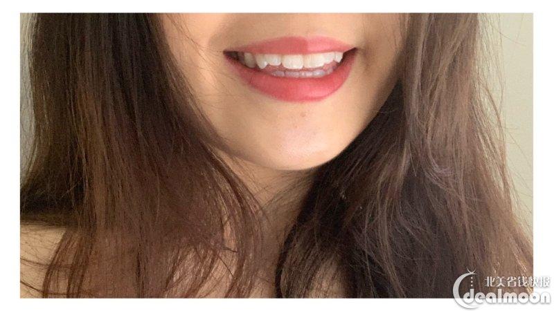 正畸日记(一)|美国牙齿矫正超详细记录|前期咨询,方案对比,