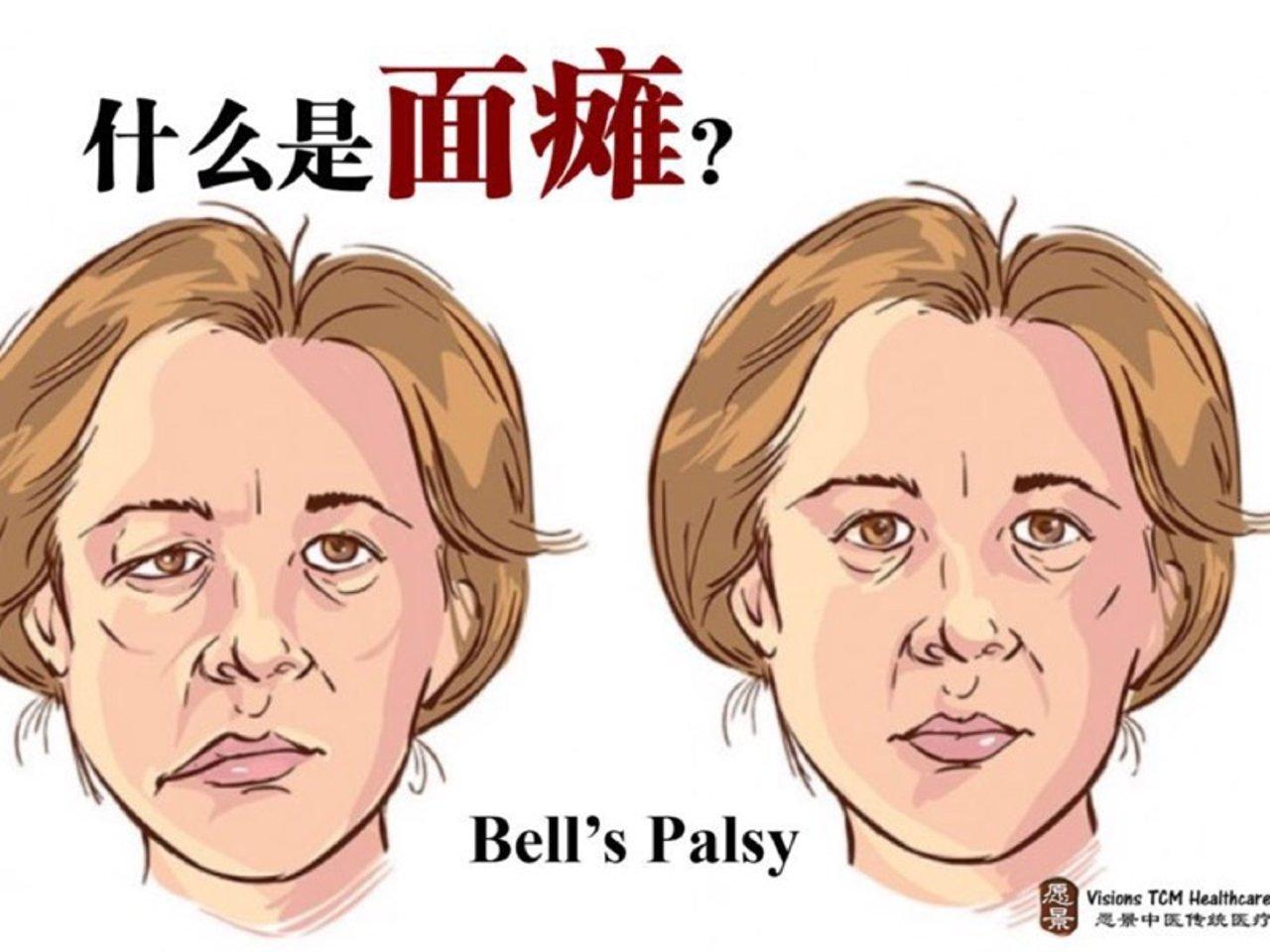贝儿氏麻痹症治疗康复全过程