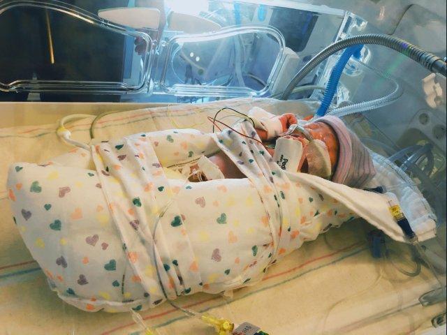 33周惊魂早产,我的天使小公主来到人间