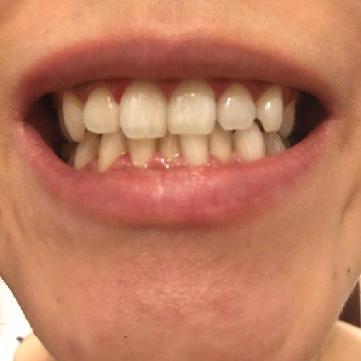 美白牙贴使用测评