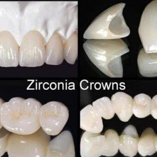 Teeth 101 美国牙冠的种类和选择...