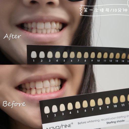 【NOVASHINE冷光美牙仪|微众测】