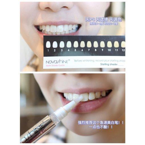微众测|口红不挑色😬Novashine牙齿美白仪🦷