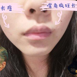 【馥洛薇小紫针初体验】...