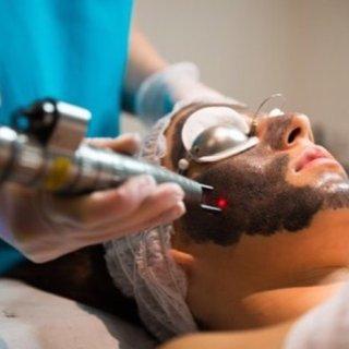 众测:人气医美项目黑脸娃娃 美肤疗法...