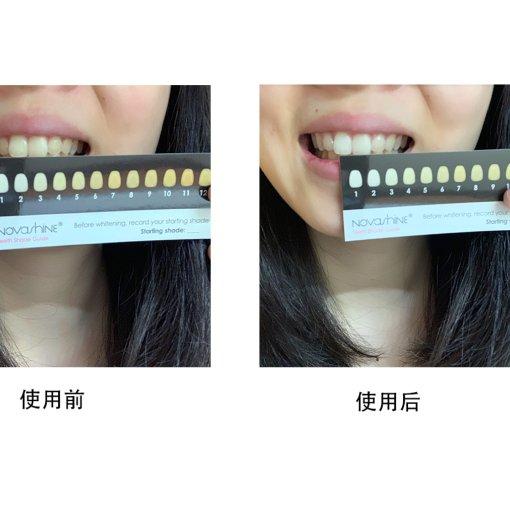 【对比图】美牙神器novashine使用一周汇报~