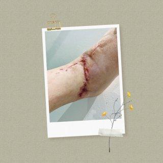 KELO-COTE祛疤膏测试Day2...