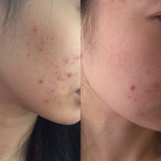 2018倒计时 | 烂脸后用的护肤品 |...