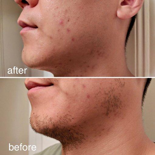 微众测 吉列剃须刀 男生想要找回光滑肌肤的好选择