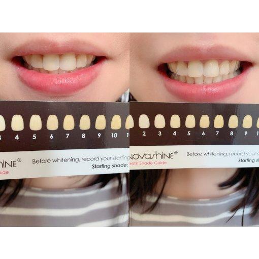 微眾測|Novashine 讓你擁有一個露出潔白牙齒的笑容