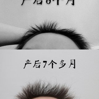 产后脱发,再生发!...