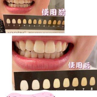 微众测 Novashine牙齿美白,让你...