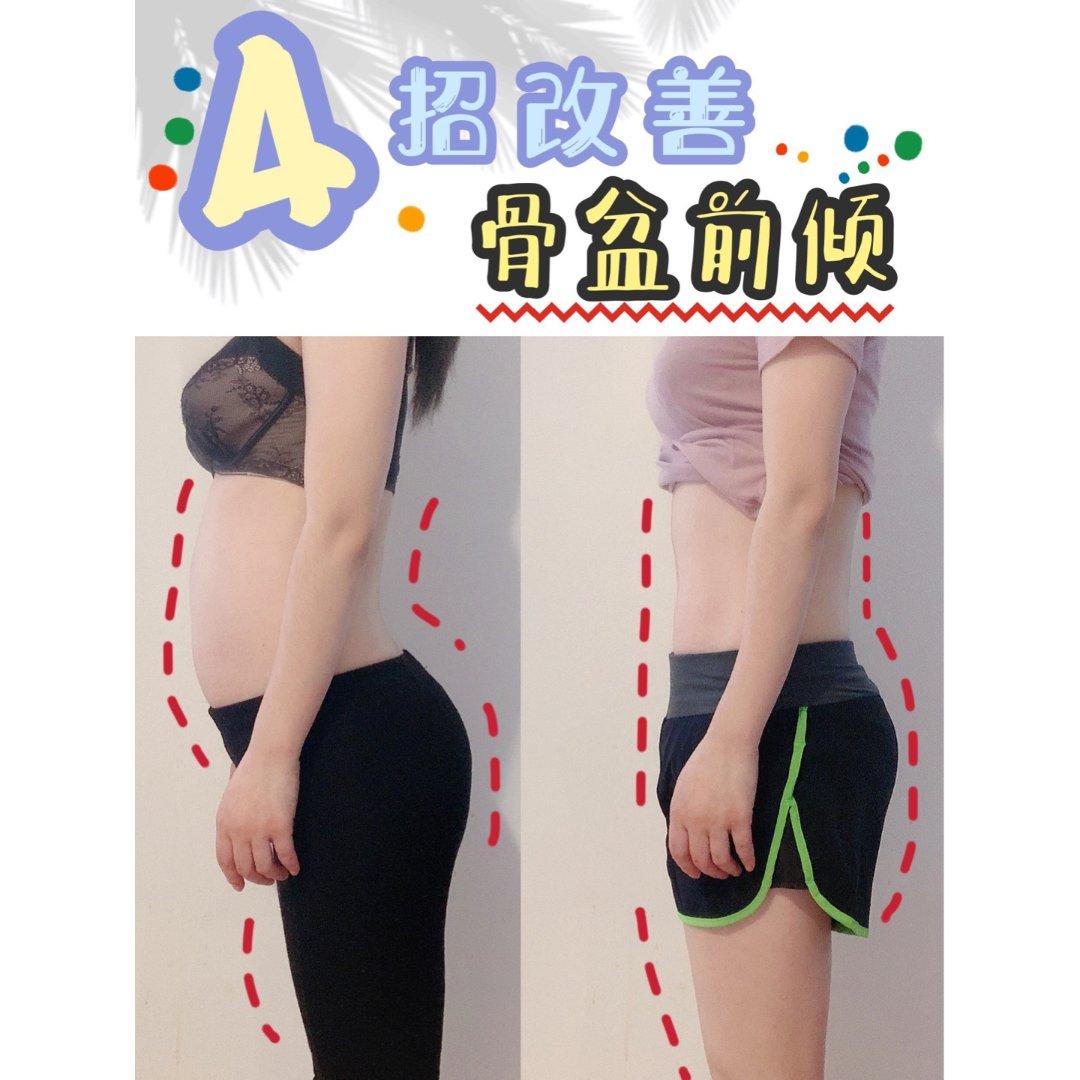 ⚡亲测4招改善骨盆前倾!