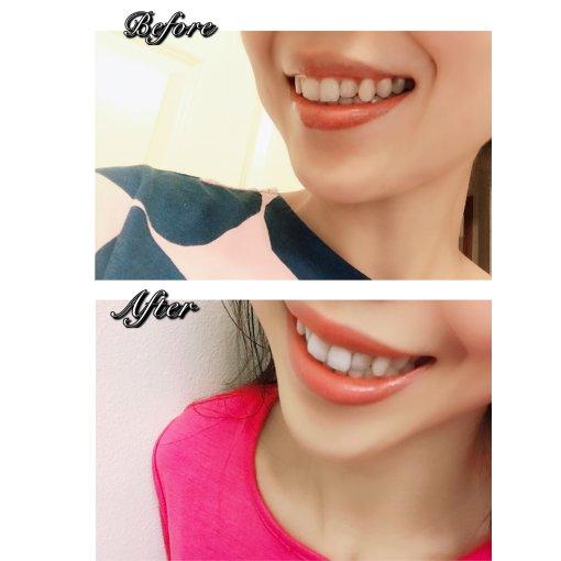 Novashine白牙神器——告别牙垢显著美白!
