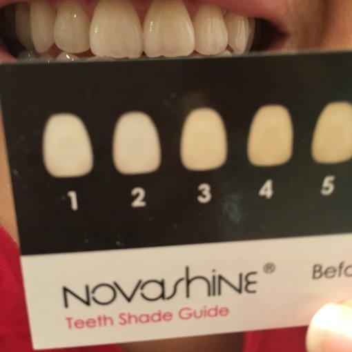为七夕盛装打扮的美女们,不要忘了牙齿护理哦!