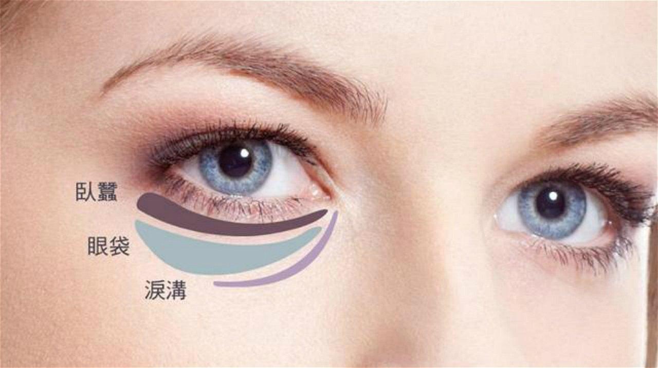 眼袋、黑眼圈、细纹?想对症下药,看这篇就够了!(眼霜+仪器+医美)