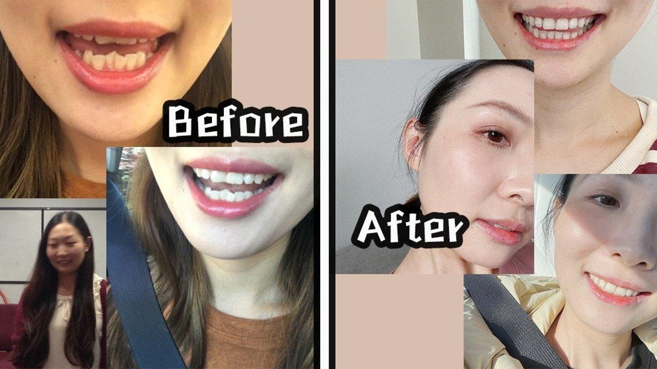 整牙=整容?戴完牙套会变美么?历时18个月!回顾我的整牙全过程(附效果对比)