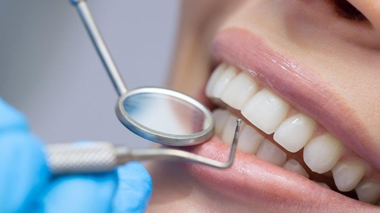 法国生活 | 看牙、洗牙、补牙等法语单词大普及