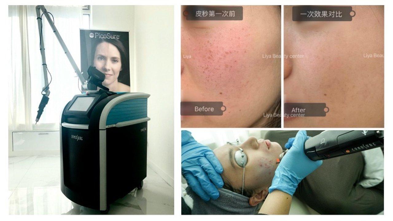 亲测最值得一试的医美项目:FDA认证专业PicoSure蜂巢皮秒,顽固斑点、毛孔暗沉、陈年痘印竟然就这么消失了?!