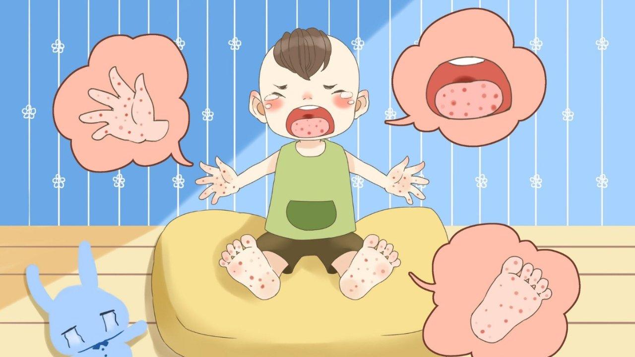 夏季手足口病高发!你家娃有没有中招?手足口病英文是什么?得了手足口有啥症状、怎么处理?
