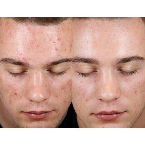Premier Laser & Skin£80起,按肌肤状况收费果酸焕肤 Peels