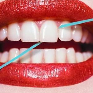 $49起(原价$120)尽情开怀大笑Vogue Skin and Laser 牙齿激光美白护理