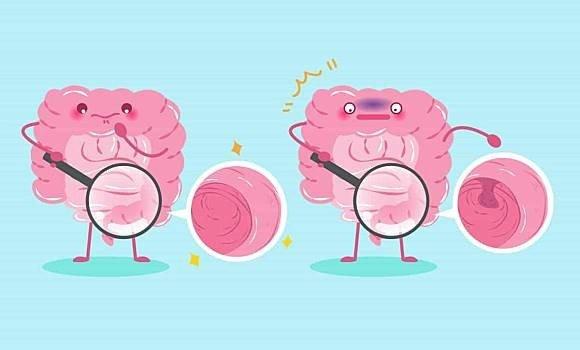 健康懒人包|如何预防结肠癌?结肠癌7种常见症状,你一定要知道