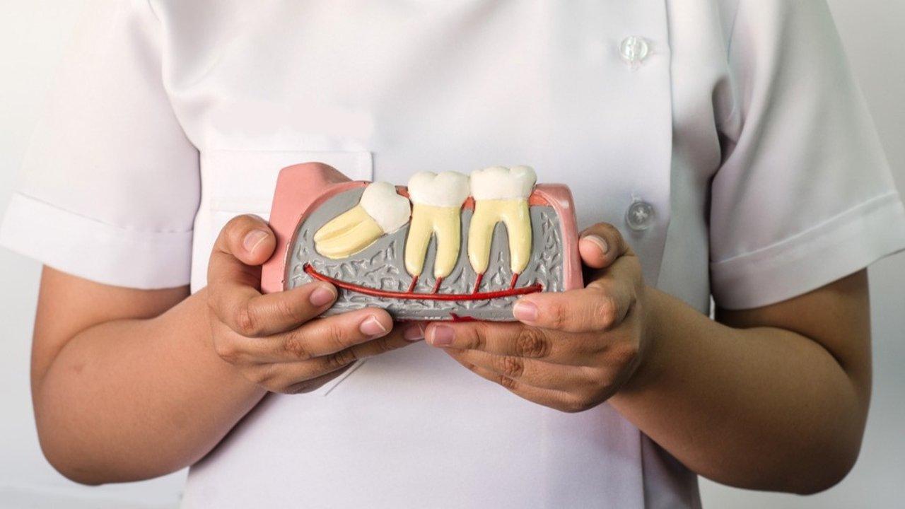 智齿英文是什么?智齿到底该不该拔/不拔智齿有何后果/拔智齿后多久能恢复 关于智齿你必须知道的小知识