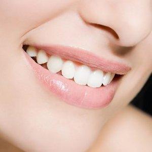 8.5折 拥有自信笑容Groupon Just Smiles 牙科护理套餐