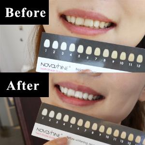 送牙齿美白笔5天实测视频!在家冷光美白牙齿靠谱吗?