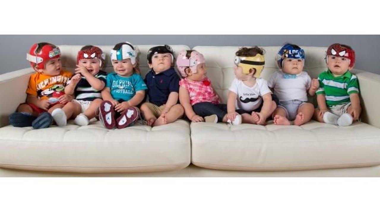 关于宝宝头型纠正头盔的一切  Everything you should know about Cranial helmet