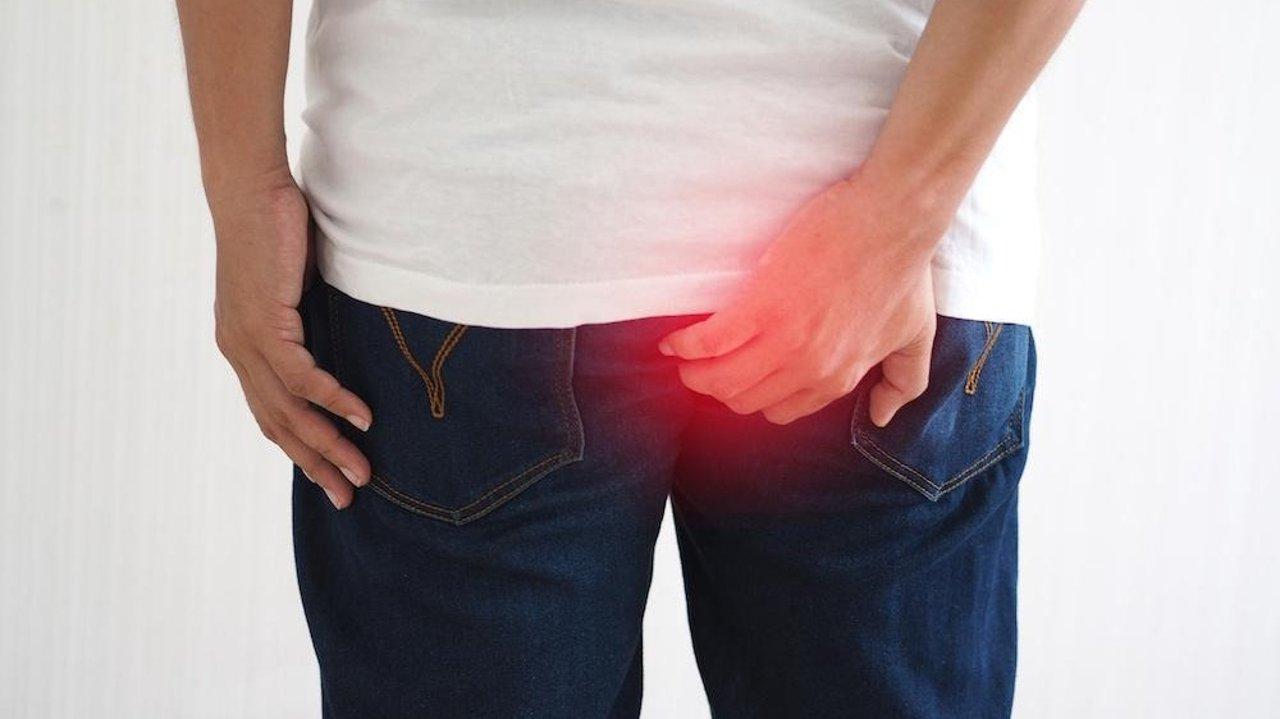 痔疮 Hemorrhoids 是什么?得了痔疮怎么办?常见痔疮解决办法有哪些?