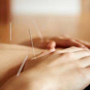 中医针灸在慕尼黑也可以进行,低至3.4折