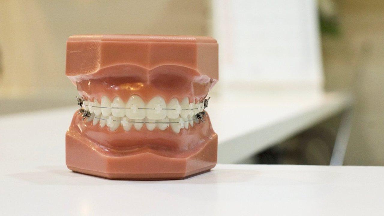 在加拿大怎么做牙齿矫正?牙套种类+整牙费用+保险问题全攻略